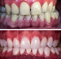 Zahnarzt Veneers oder Bleaching